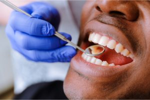 Close up of black male getting fillings